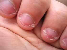 obgryzane paznokcie