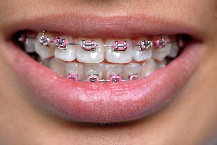 ortodoncja-1d(2).jpg
