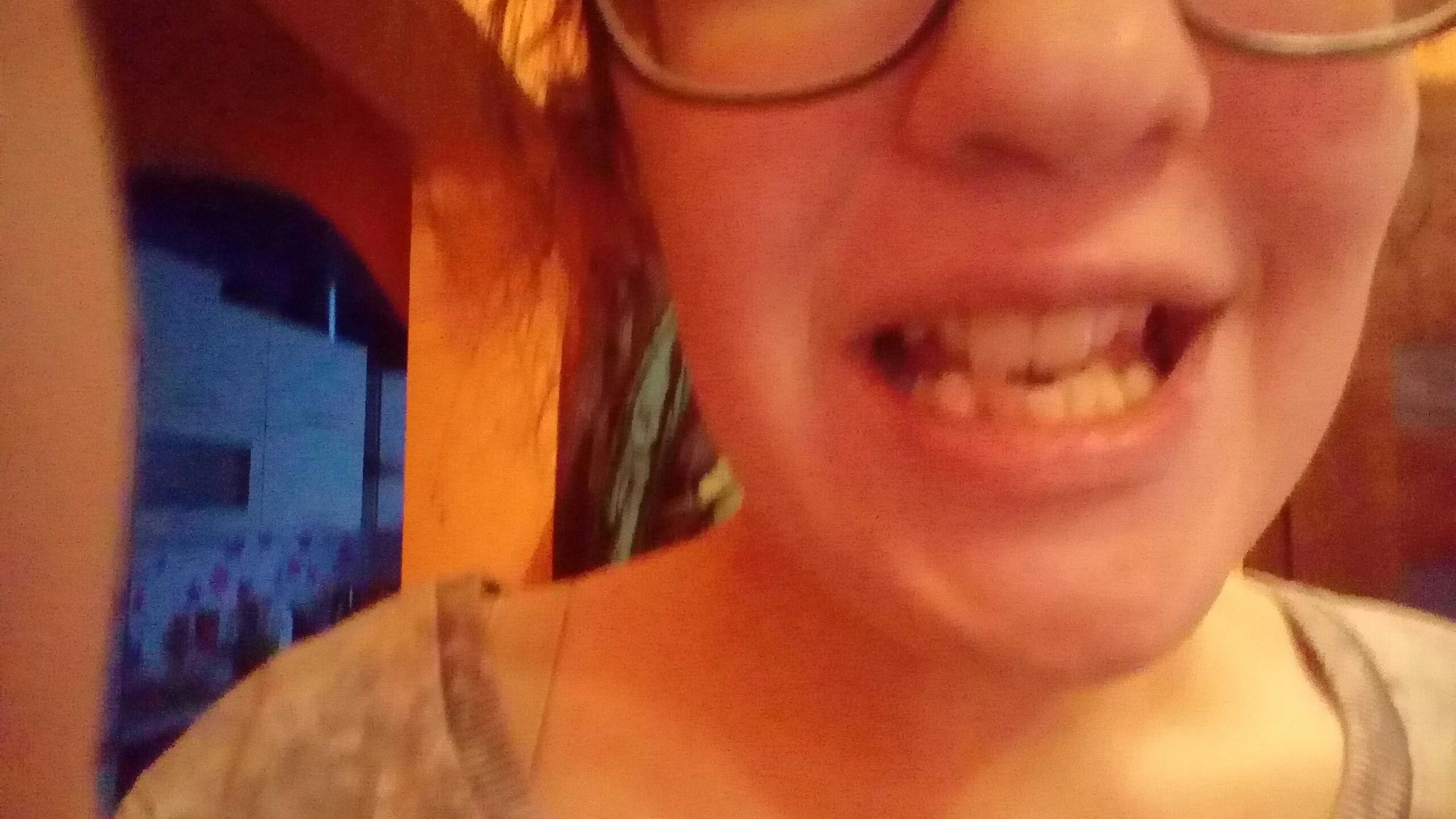 Czy Mam Bardzo Krzywe I Brzydkie Zęby Zapytajonetpl