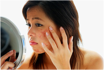 getty_rf_photo_of_asian_woman_with_acne.jpg