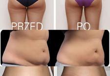 mrożenie tłuszczu - Maria Twarowska Piercing&... zdjęcie 10