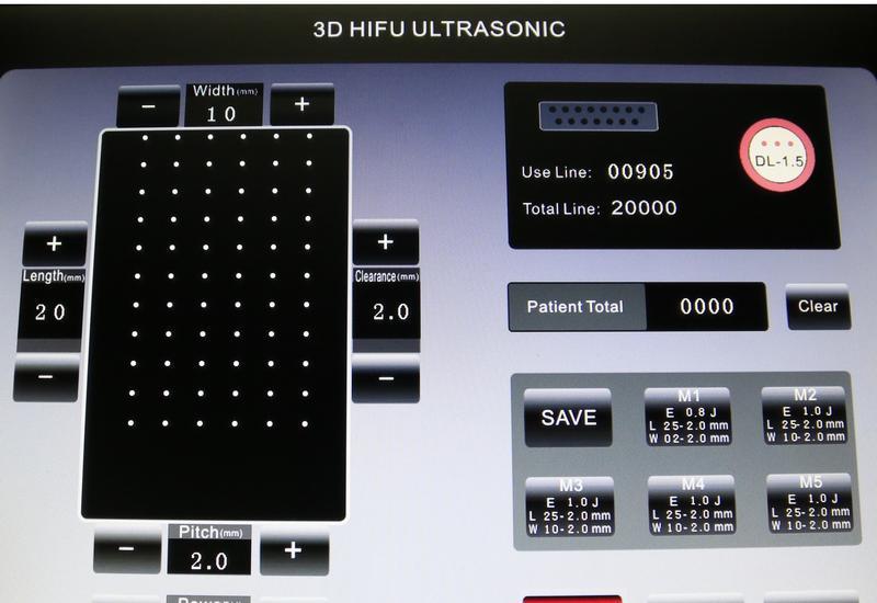 Liposonix - T-B Lasery Zygmunt Wicińs... zdjęcie 1