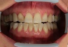 stomatolog, dentysta, protetyka