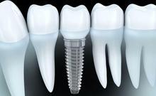 Implantologia – implanty stomatologiczne
