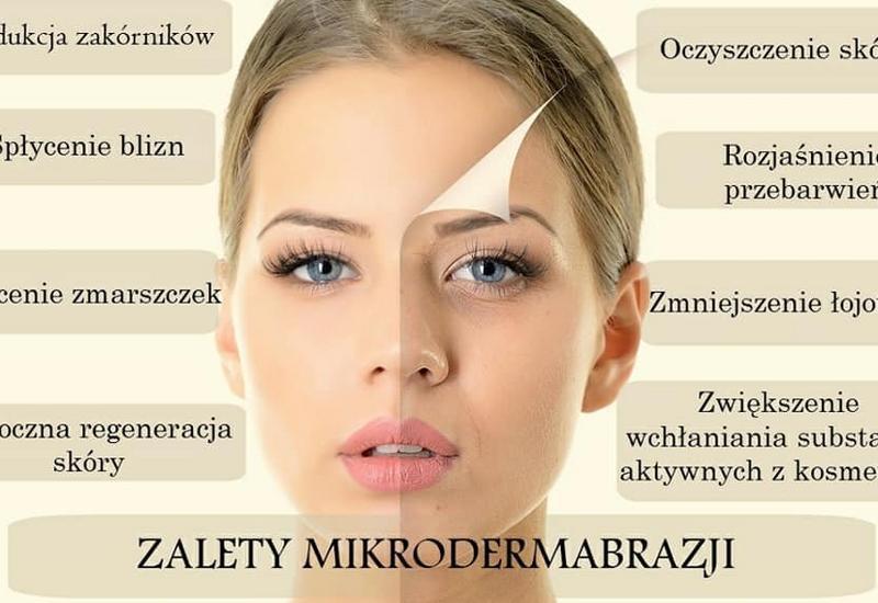 zabiegi kwasem hialuronowym - Maria Twarowska Piercing&... zdjęcie 8