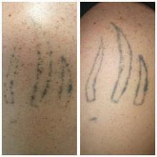 Usuwanie tatuaży