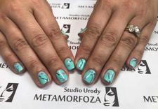 nastrzykiwanie botoxem - Studio Urody Metamorfoza zdjęcie 15