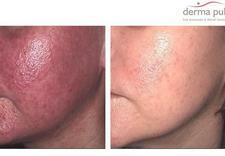 wypadanie włosów - Derma Puls Centrum Dermat... zdjęcie 17