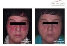ulthera - Derma Puls Centrum Dermat... zdjęcie 12